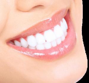 smile 2 160928 57ec398609997 300x279 1 Dentist Stratford | Dentist Near Me ON | Dental Office N5A 3J7 - Coventry Dental Care